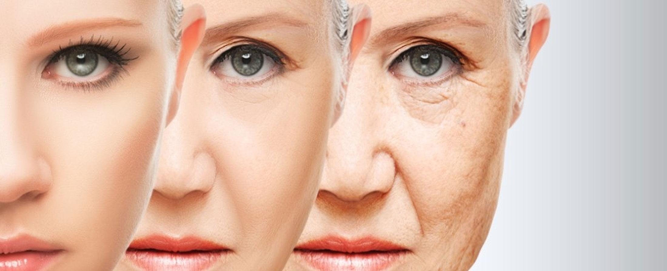 Tratament impotriva ridurilor – Metode si remedii pentru a preveni ridurile
