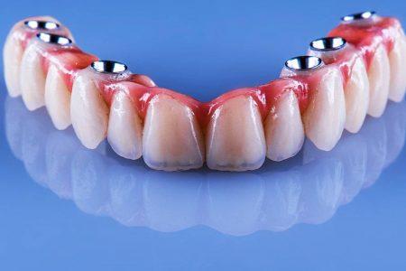 Implant Dentar – Intrebari si raspunsuri – Preturi Implanturi