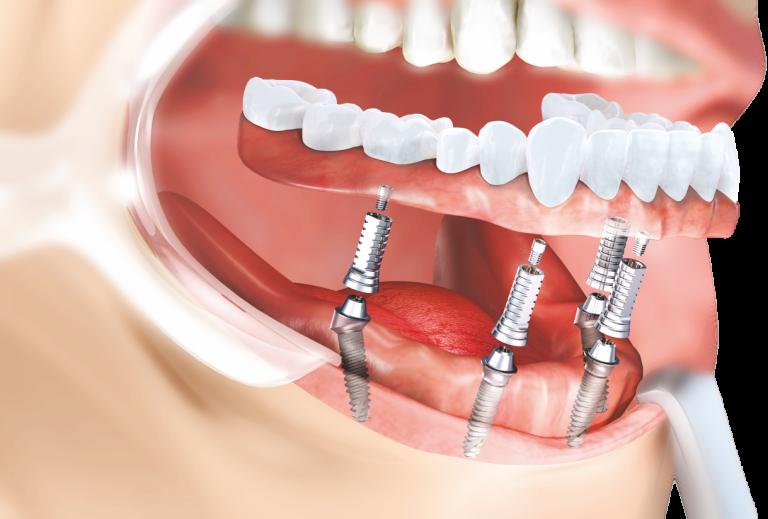 implant dentar zirconiu